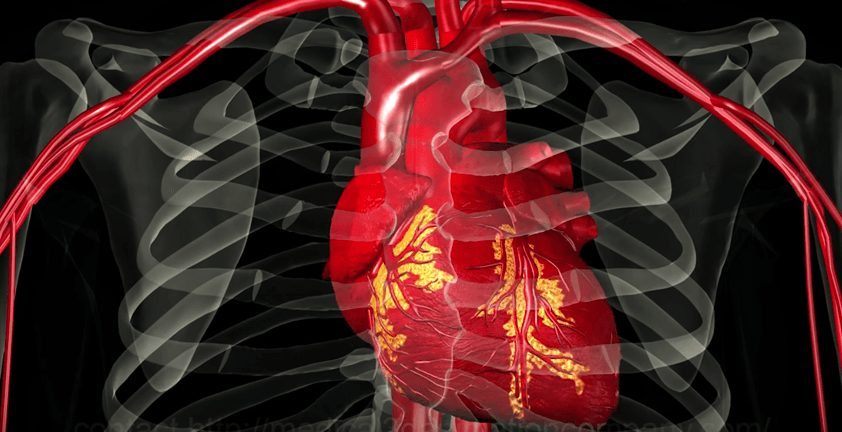 Heart Arrhythmia Medical 3D Visualization