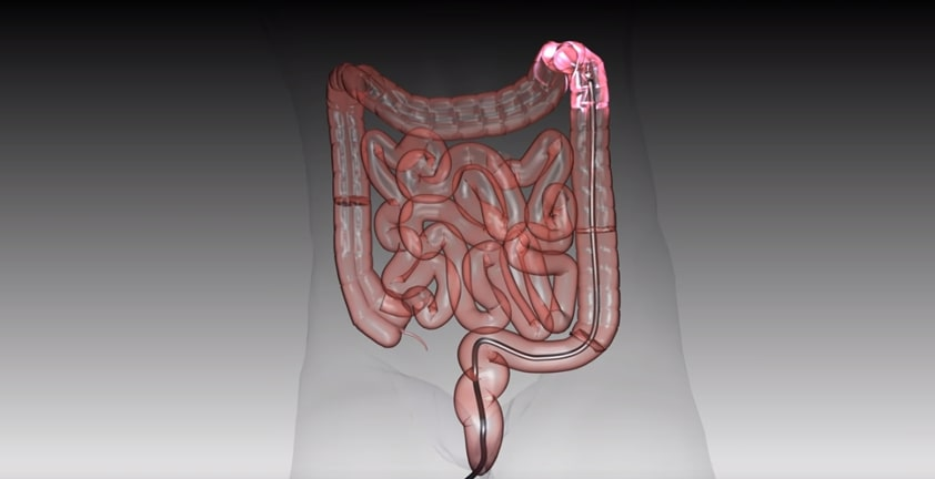 Endoscope Colonoscopy Medical Visualization