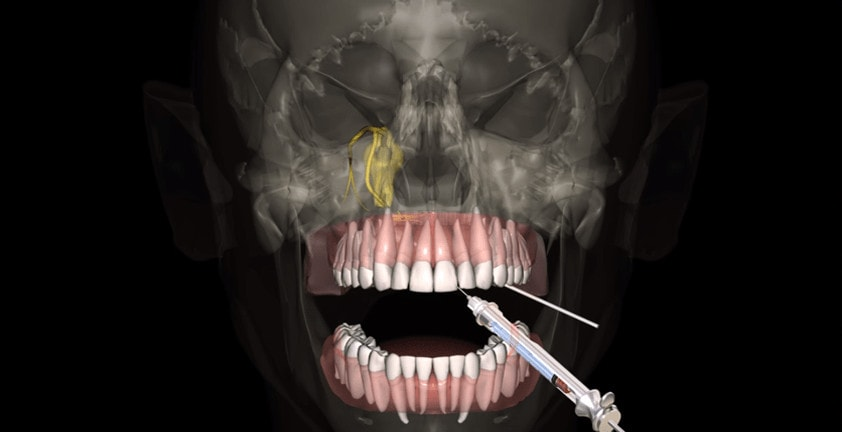 Dental 3D Anesthesia Animation