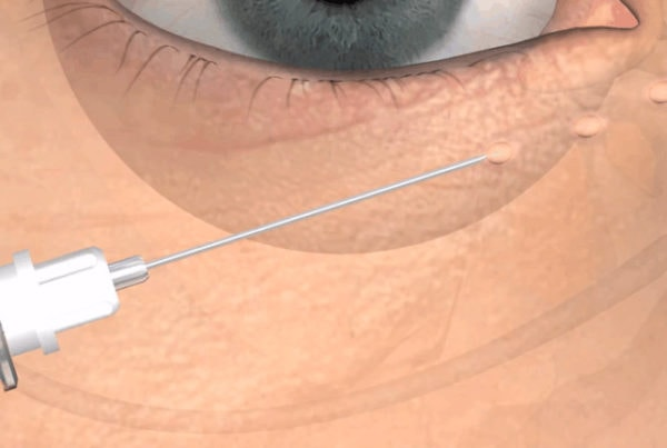 Plastic surgery - Medical animation