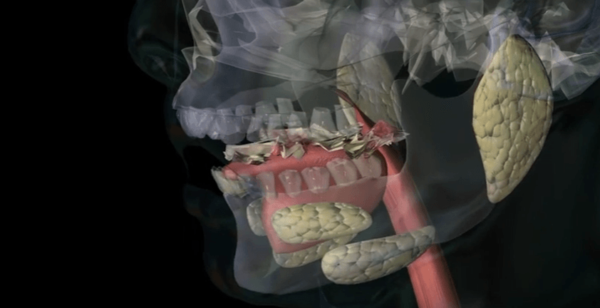 Gastric Bypass Surgery And Mastication 3D Medical Visualization