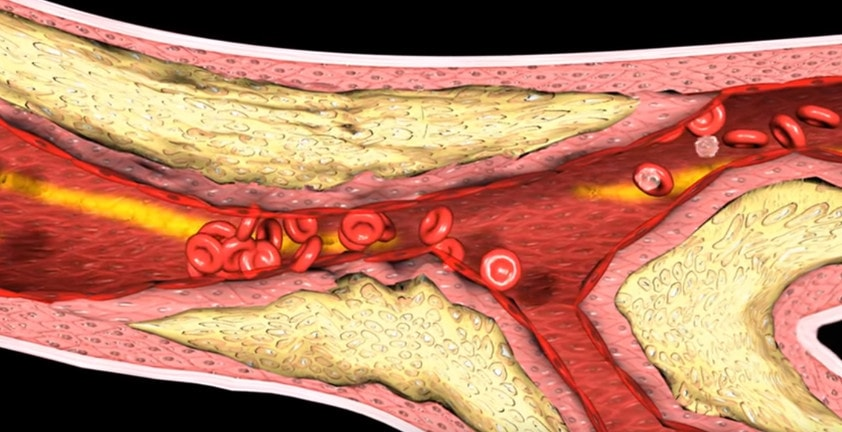 3D Medical Animation | Myocardial Infarction Thrombosis