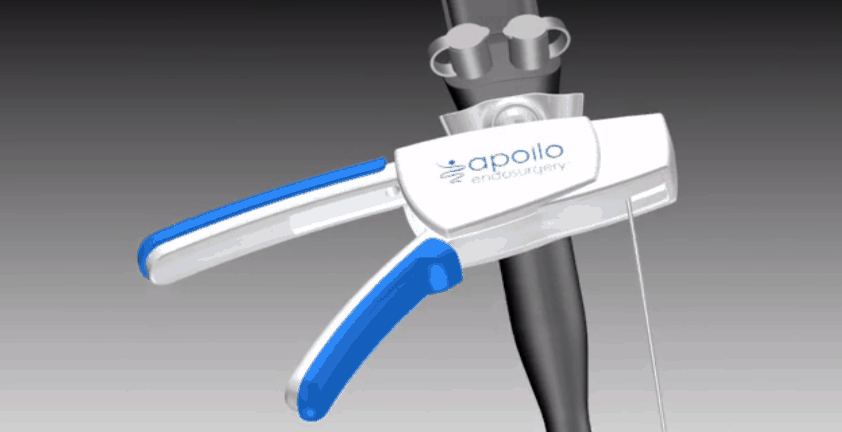 Endoscopic Medical Device 3D Animation