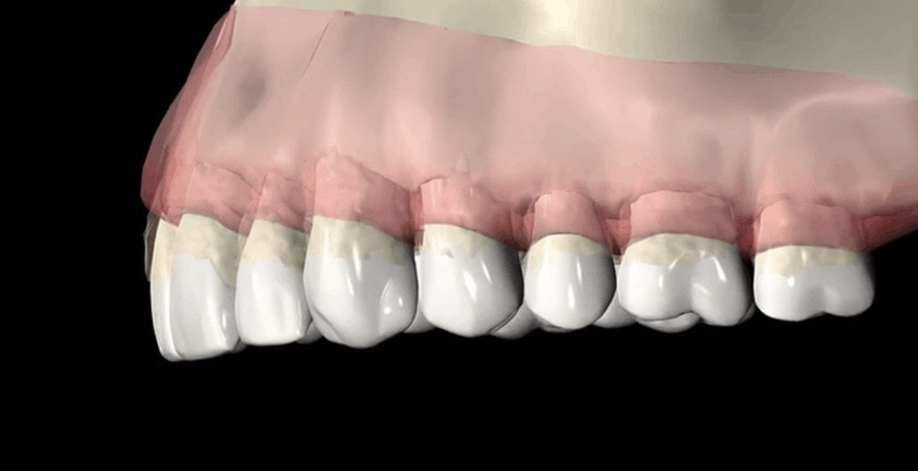 3D Dental Medical Animation | Periodontal Disease