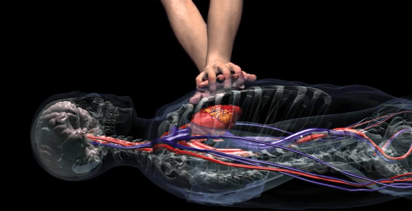 Chest Compression Medical 3d Animation