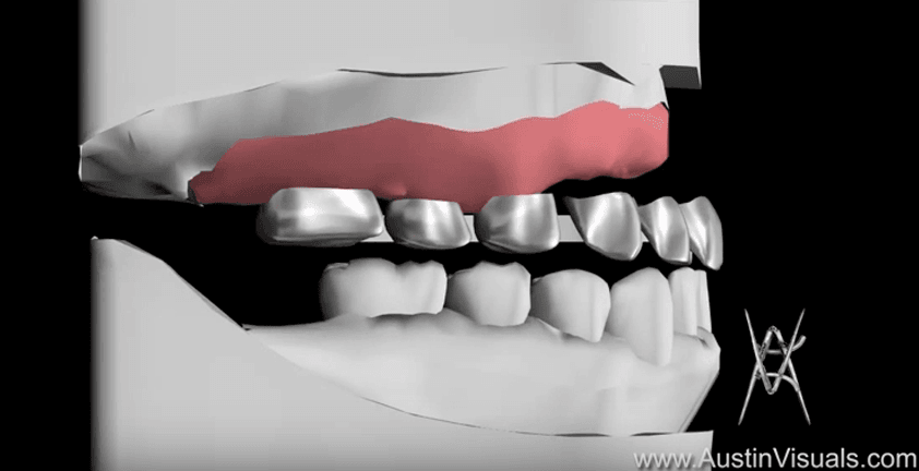 Dental Implant Surgical Procedure 3D Animation | Client Dr. Reebye